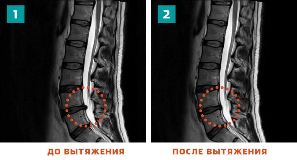 грыжа позвоночника на МРТ
